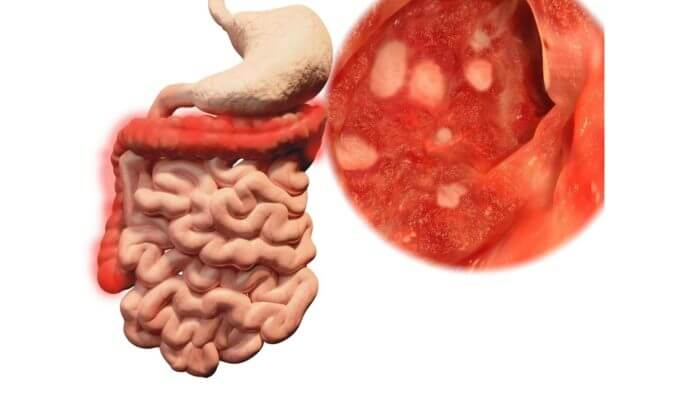 Gastrintestinal system showing stomach and intestine with an outsert of the inner linig of the stomach revealing several ulcers