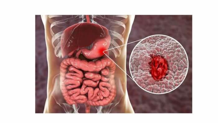 Stomach and Intestines - little insert shows an ulcer.