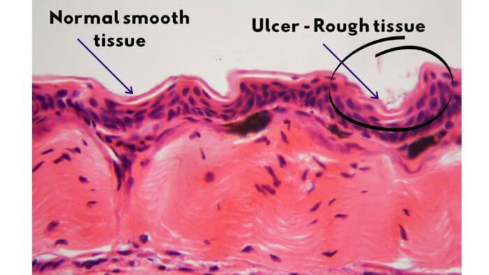 Photo of internal tissue structure showing smooth normal lining versus rough ulcer lining
