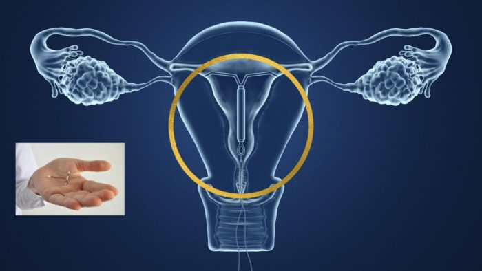 A Copper Coil placed in the womb is an effective form of emergency contraception