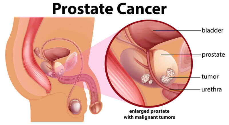 What Prostate Cancer is about
