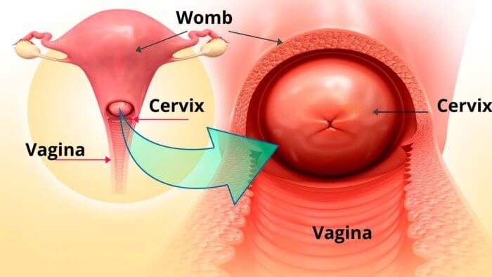 Vaginal Bleeding After Sex - Structure of the vagina, cervix, womb